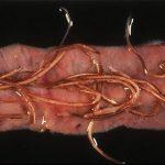 Nematodos en intestino